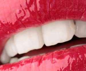 denti donna perfetti con rossetto
