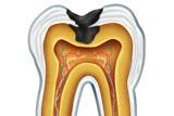 sezione di dente con carie profonda