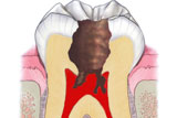 Polpa dentale affetta da pulpite