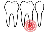 Apicectomia di primo molare