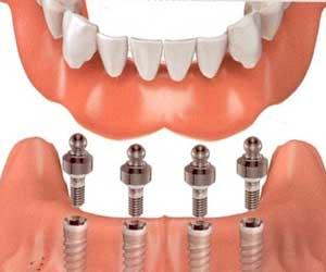 overdenture inferiore su mini-impianti dentali