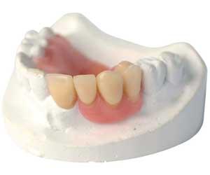 protesi mobile parziale inferiore