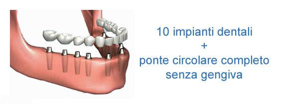 10 impianti dentali con ponte circolare completo zirconio