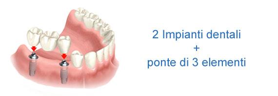 2 impianti ed un ponte dentale di 3 elementi