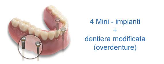 4 mini impianti più dentiera modificata overdenture