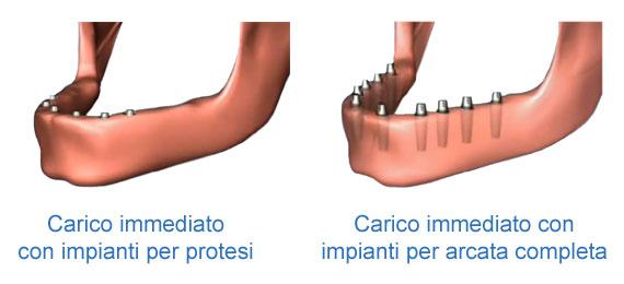 impianti per protesi con flangia o arcata completa e carico immediato