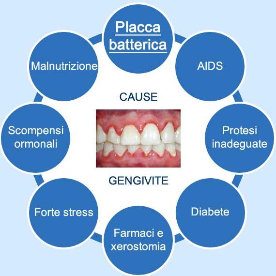 diagramma delle cause della gengivite
