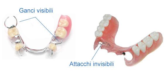 esempio di ganci visibili e attacchi invisibili su protesi scheletrato