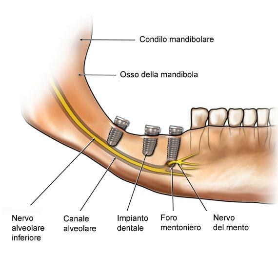 impianto inserito sul nervo causa insensibilità al labbro ed al mento parestesia