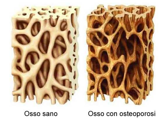 esempio di osso mascellare con osteoporosi