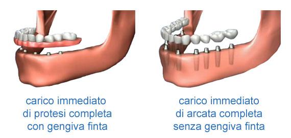 protesi fissa a carico immediato