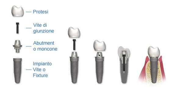 parti di un impianto dentale, abutment, protesi e vite in titanio o fixture