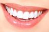 denti frontali superiori