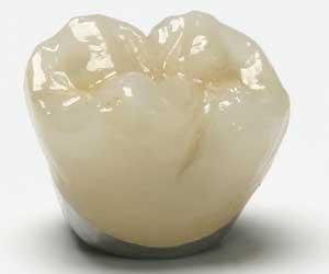 capsula o corona in ceramica e metallo